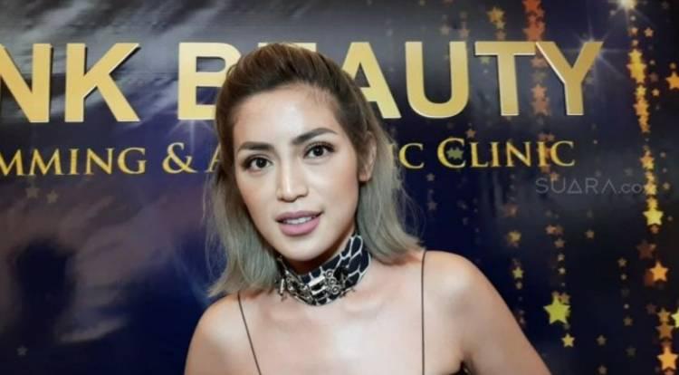 Leher Bengkak Akibat Idap Autoimun Graves, Netizen Doakan Jessica